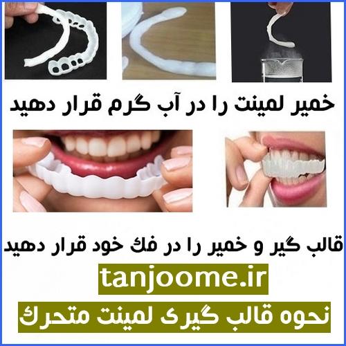 قالب گیری دندان برای لمینت