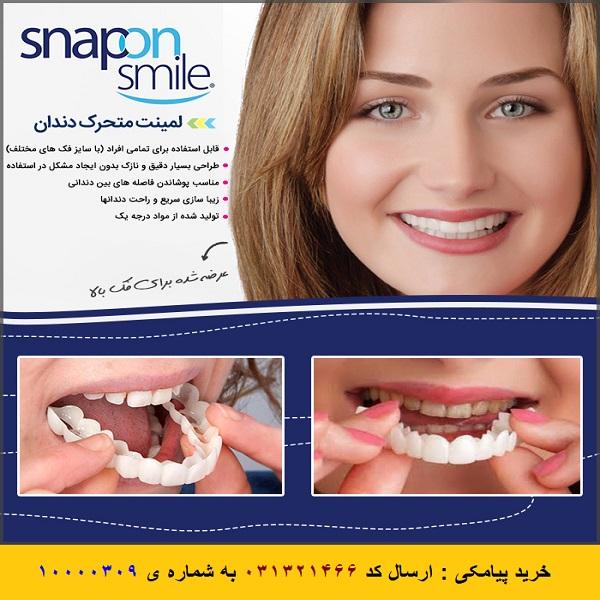 لمینت متحرک دندان اسنپ آن اسمایل Snap On Smile