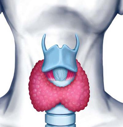 نشانه های اختلال در تیروئید Thyroid disorder